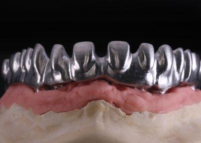 Prótese Sobre Implante